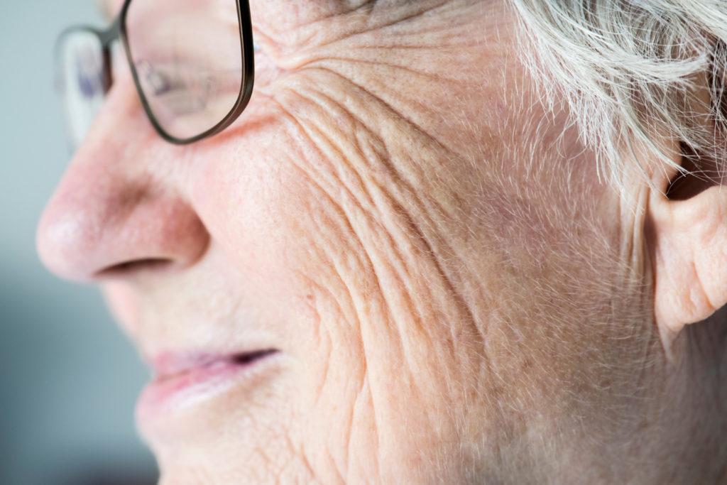 Pigmentflecken auf Gesicht & Händen – was tun gegen die braunen Flecken?